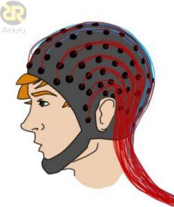 آزمایش EEG