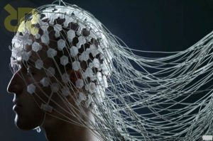 آناتومی کلاه EEG