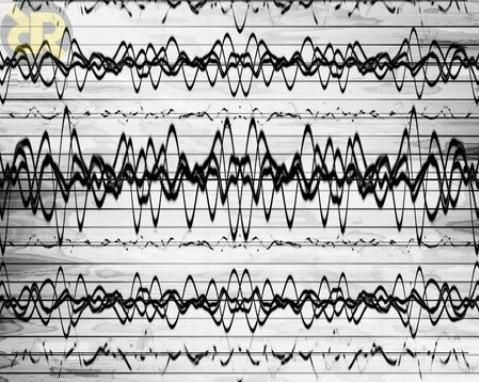 امواج مغزی ثبت شده توسط eeg