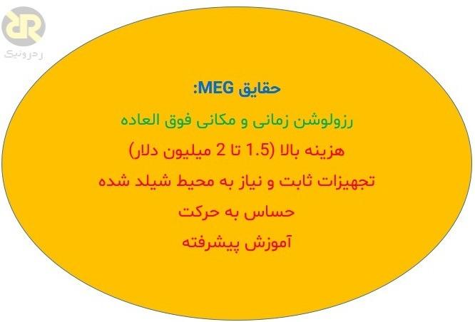 ویژگی های MEG